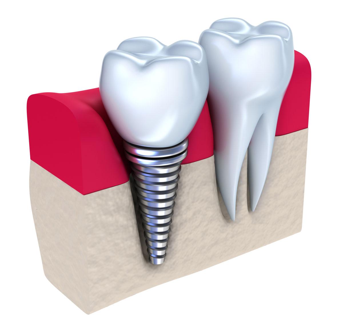 Саме тому медичний центр стоматології
