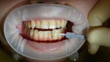 Как от никотина отбелить зубы в домашних условиях 463